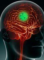 کاهش گسترش سرطان مغز با کمک یک مسیر سلولی