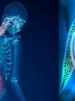 شیوع بالای پوکی استخوان در سنین بالای ۵۰/ کمبود جدی ویتامین D